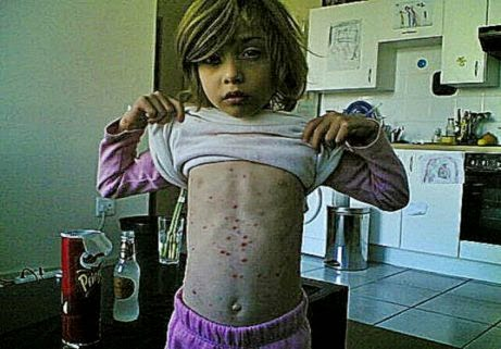 Parents Host Chicken Pox Parties to Infect Their Children With the