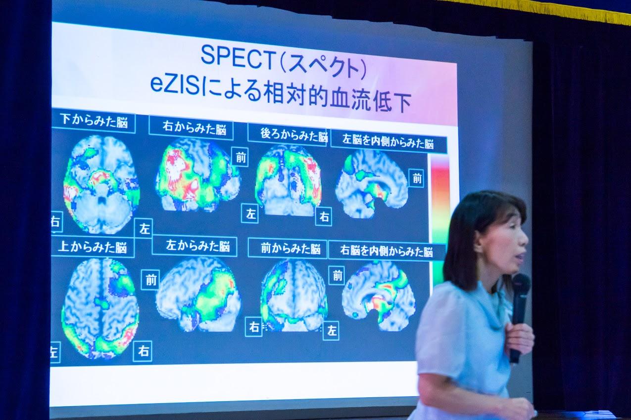 SPECT(Single Photon Emission Computerd Tomography:単光子放射線コンピュータ断層撮影)による相対的血流低下画像
