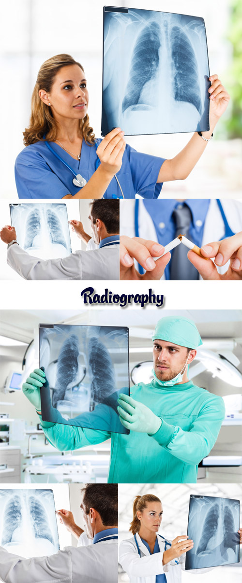 Stock Photo: Radiography