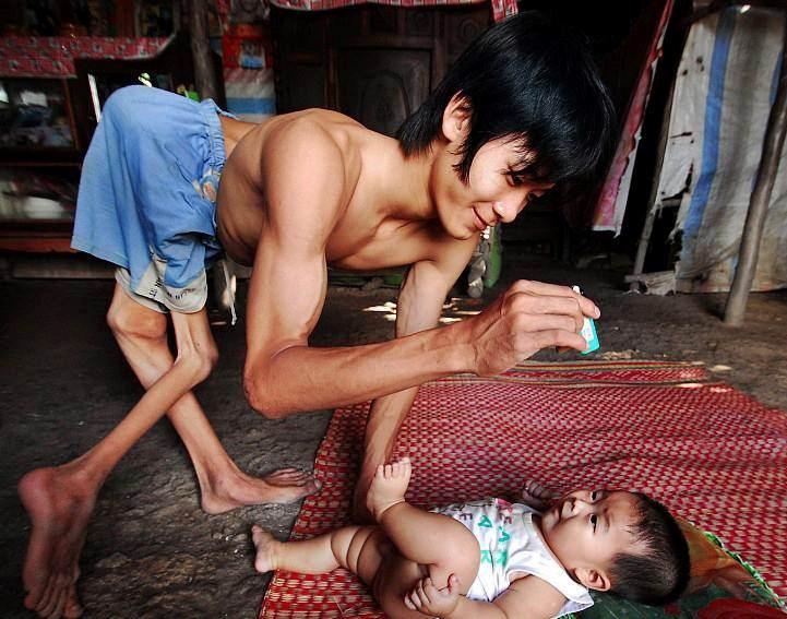 Thơ người cha khuyết tật