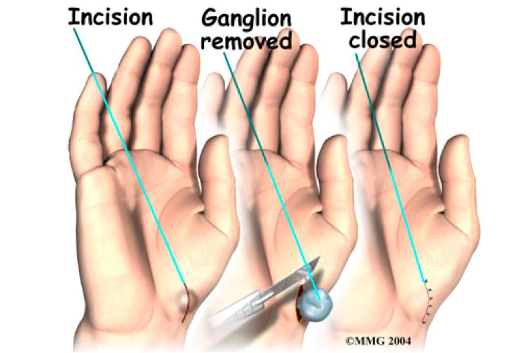 Hình ảnh minh hoạ các bước tiểu phẫu u bao hoạt dịch