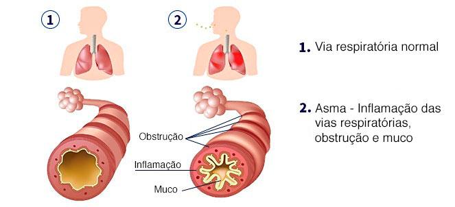 asma e os probióticos