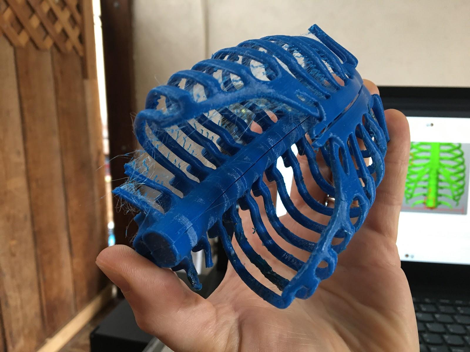 3D printed ribcage halves glued together.