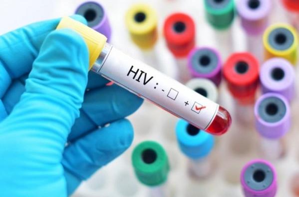 Biểu hiện của HIV theo từng giai đoạn | Vinmec