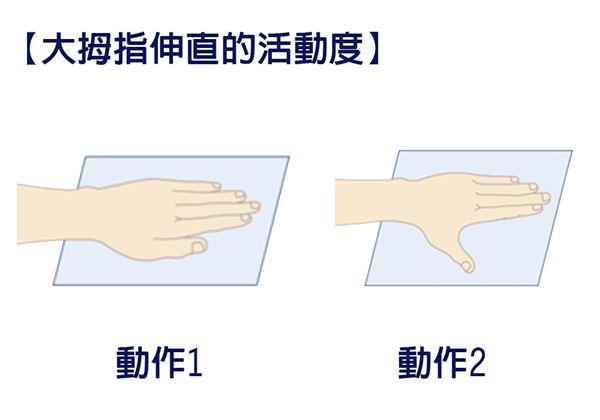 【大拇指伸直的活動度】手平放在一個平面上,讓大拇指與其他四指併攏,皆接觸在平面上。