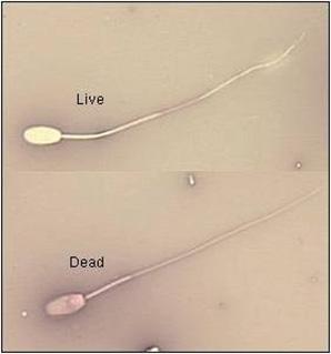 Supravital stain eosine. Top: Live sperm (colorless); Bottom: Dead sperm (pink).