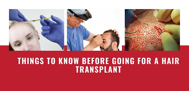Things to Know Before Going for a Hair Transplant