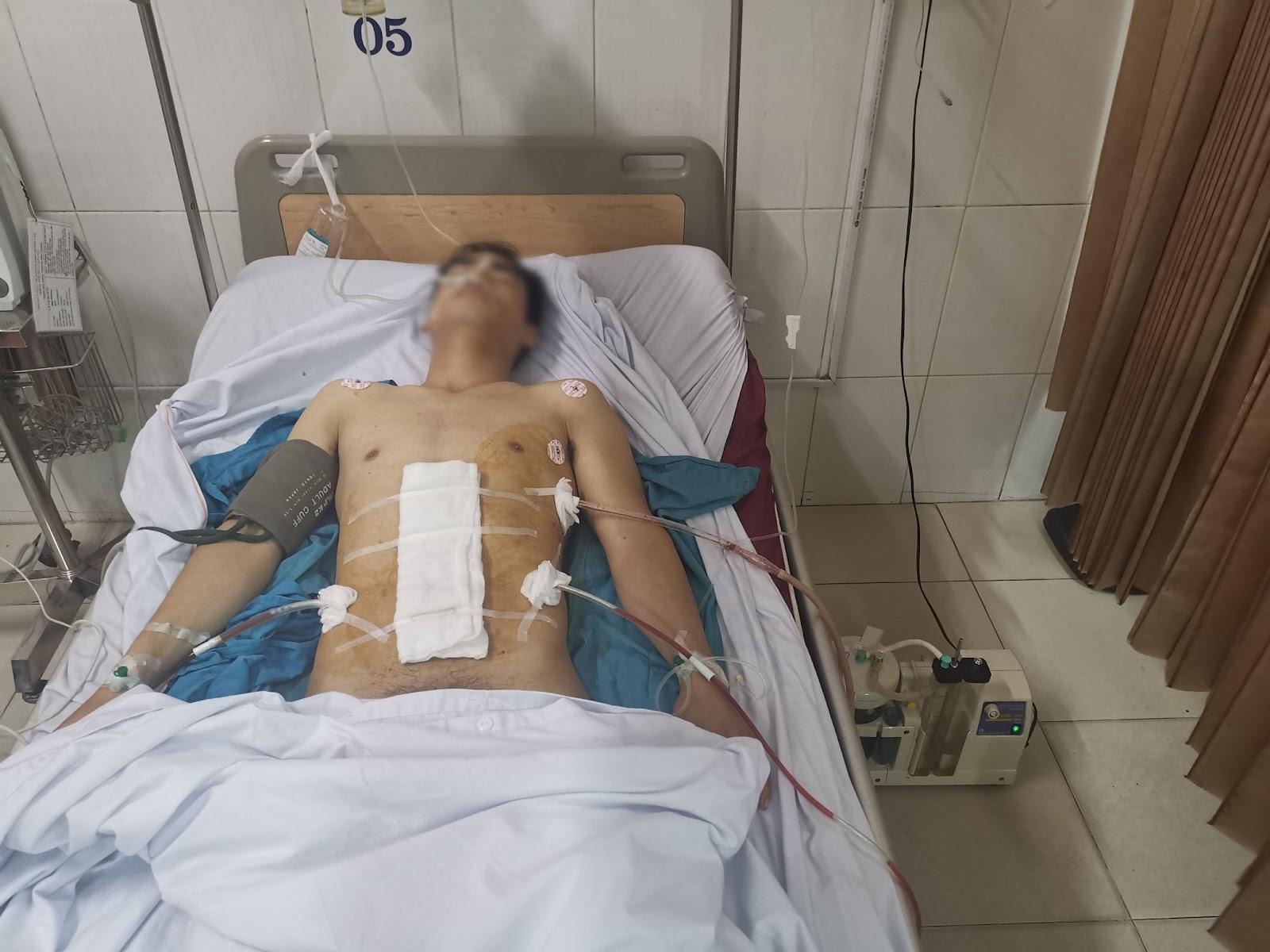 Phẫu thuật cấp cứu bệnh nhân vết thương thấu ngực bụng do bị đâm