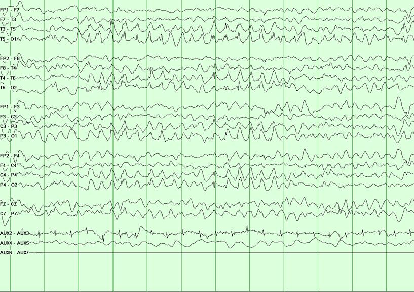 天使综合征的患者呈现典型的后缺口delta波。