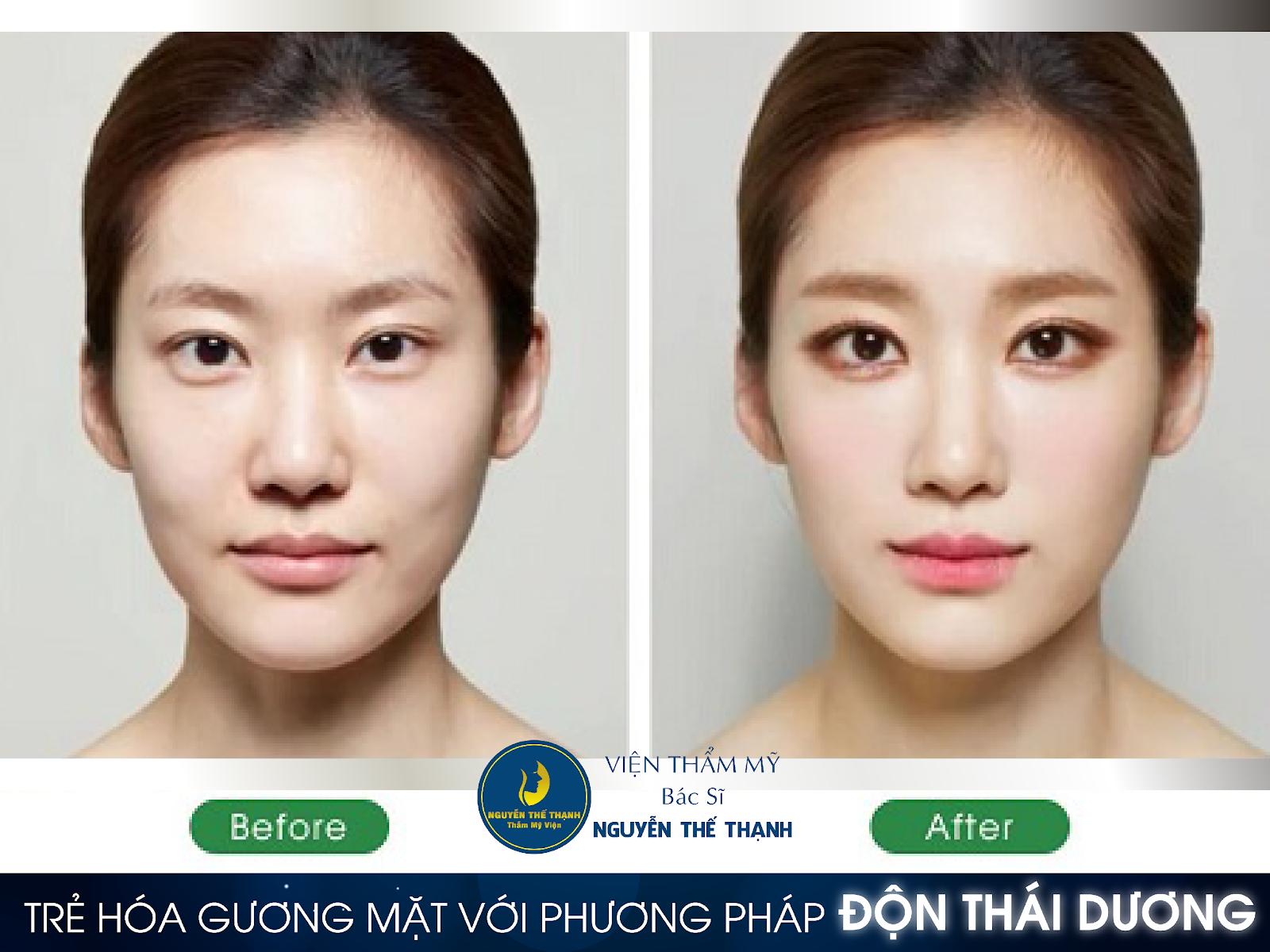 Trẻ hóa gương mặt với phương pháp độn thái dương - Ảnh 3