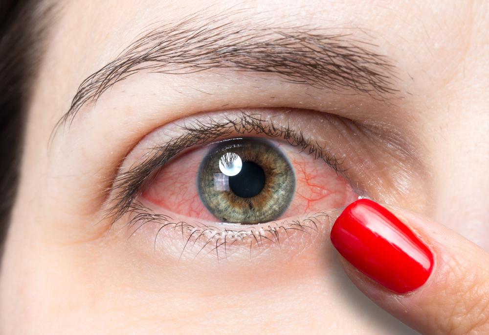 Ai ochii roșii? Iată 7 cauze ale ochiului roșu - I Care