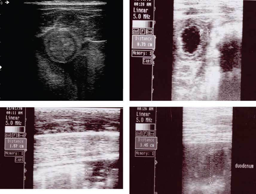 These images show thickened loops of small intestine in a horse with suspected duodenal ulcers (top left) and a weanling with Lawsonia (top right).
