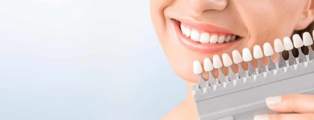 dental fluorosis treatments