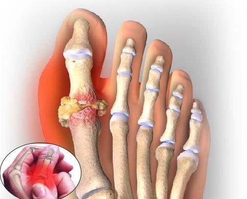 Biến chứng nguy hiểm của bệnh Gout | Vinmec