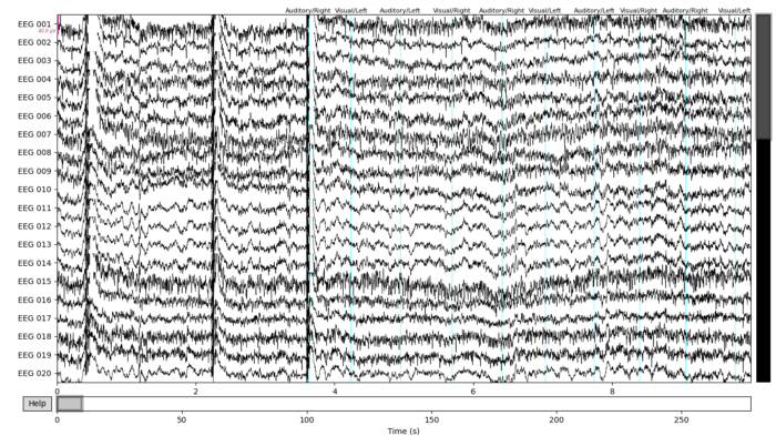 Drawing of unfiltered EEG data with tagged stimuli. MNE