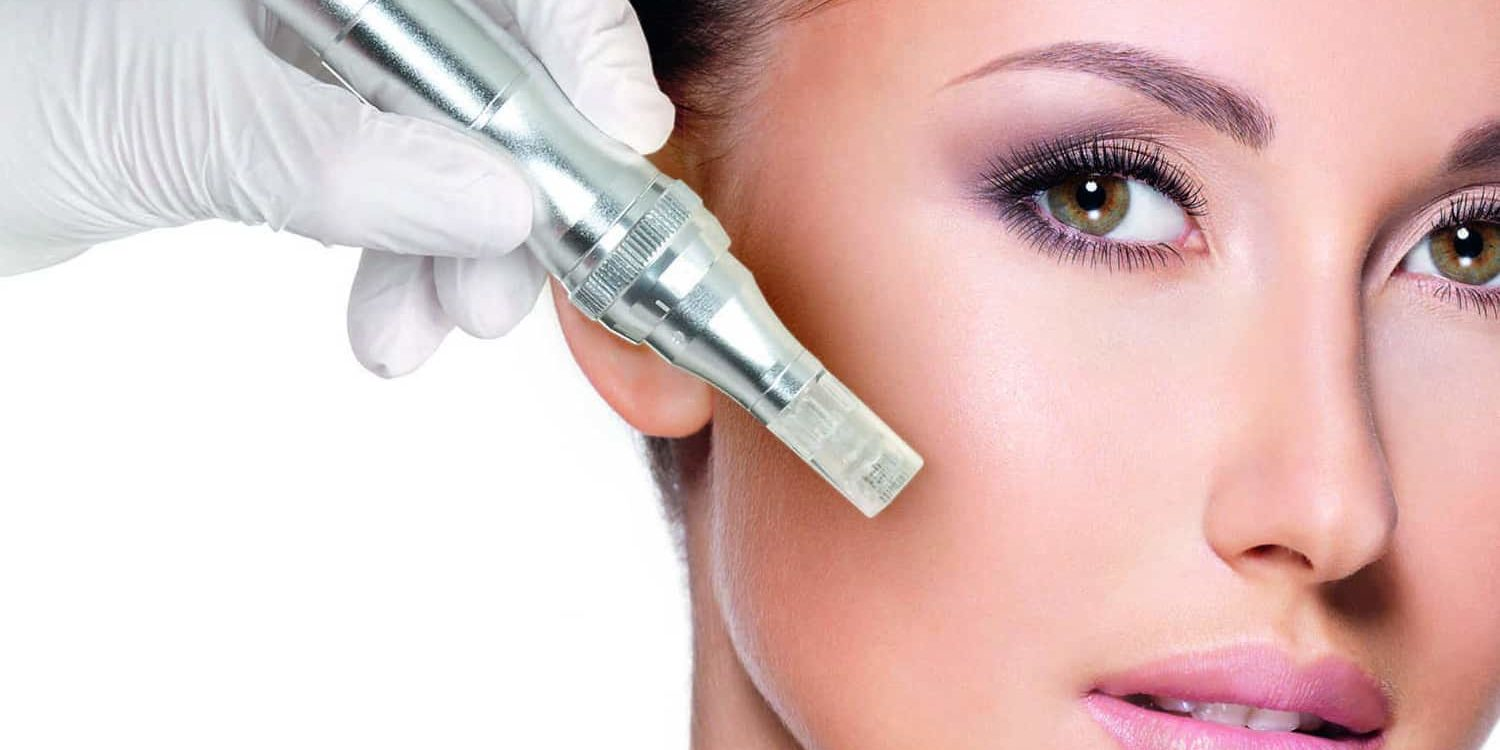 Achieve glowing skin by undergoing Collagen Induction Therapy!
