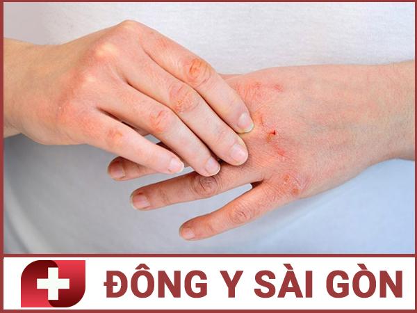 Dấu hiệu nhận biết bệnh viêm da.