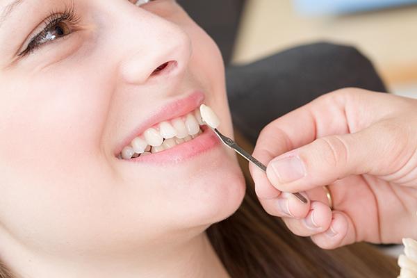 dental-veneers20161b.jpg