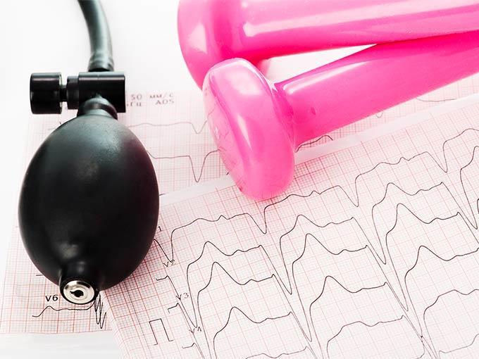 Die Aufzeichnung eines EKG liegt neben einem Blutdruckmessgerät und zwei pinkfarbenen Hanteln.