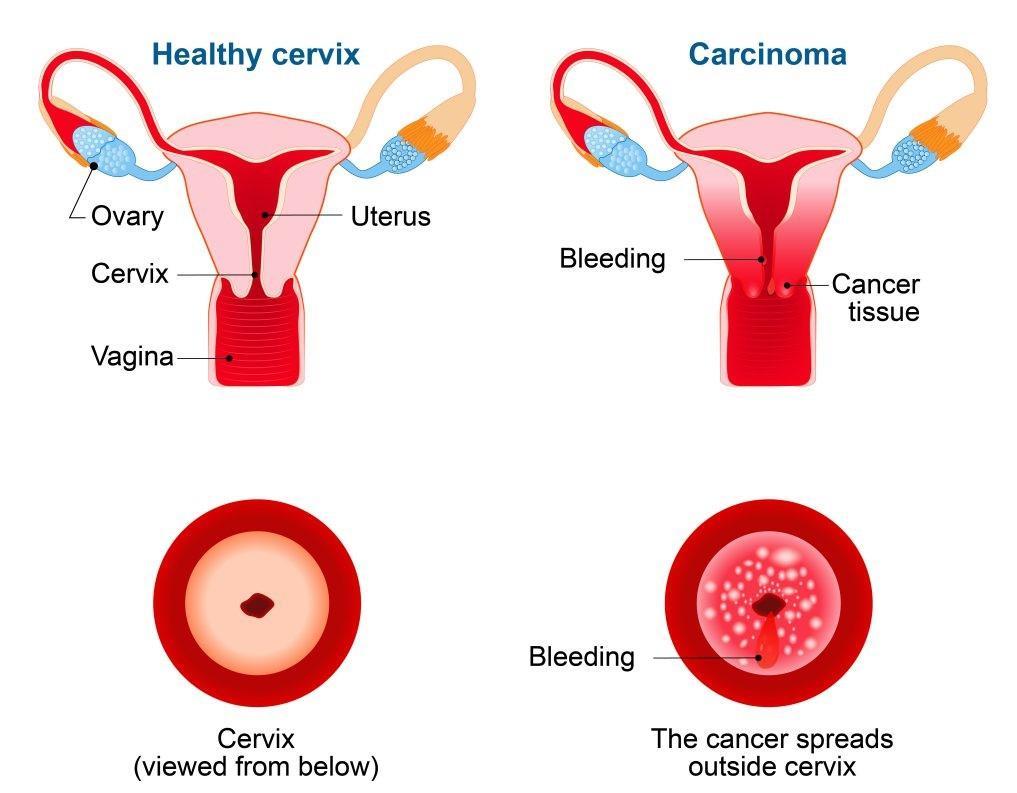 cervical cancer prevention - cervix