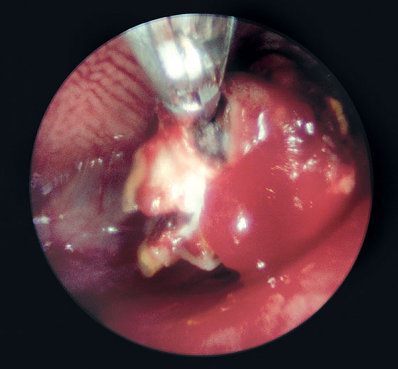 Removal of an old aspergilloma using a biopsy forceps