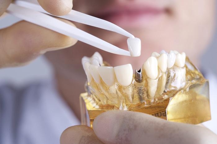 Thời gian trồng răng implant mất bao lâu ? - Nha khoa Bally 1