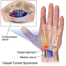 Image result for Carpal tunnel syndrome