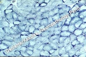 Foto 4. Lumbar Muscle Atrophy.png