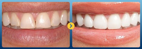 Trường hợp nào nên áp dụng làm máng tẩy trắng răng