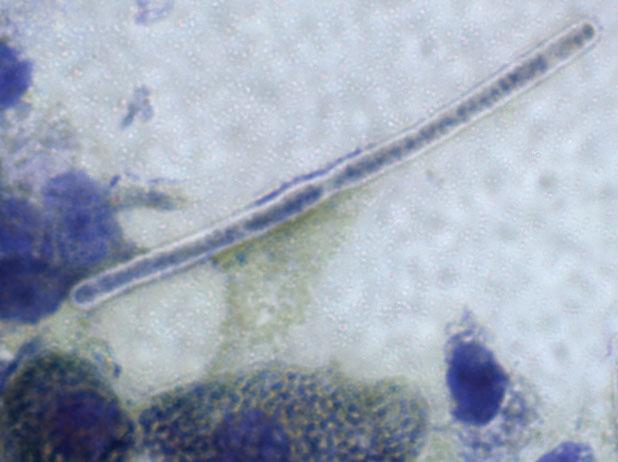 Gram stain of M. ornithogaster