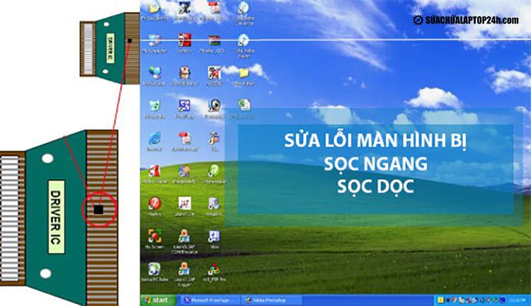 Màn hình laptop bị sọc dọc nhiều màu