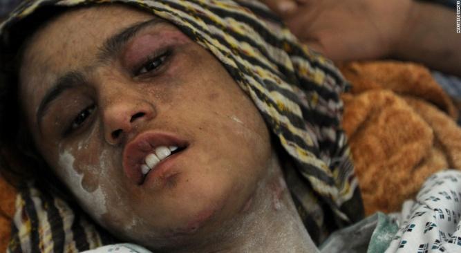 سازمان ملل بر پایان معافیت از مجازات عاملان خشونت با زنان تاکید کرد –  خبرگزاری افق