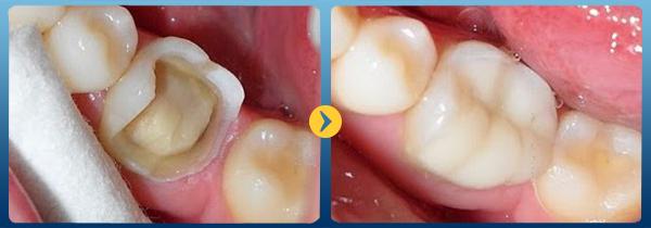 Hàn răng cửa bị mẻ có tốt không, độ bền bao lâu? 1