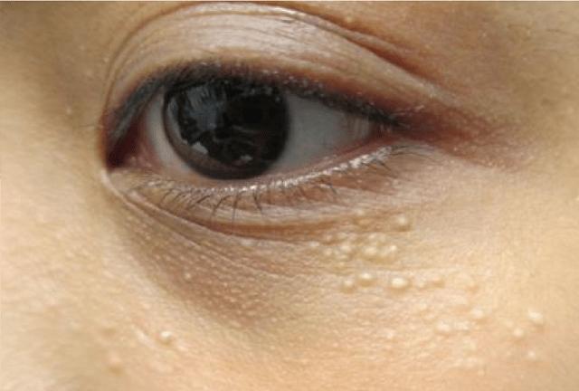 mụn đá trên mặt do di truyền