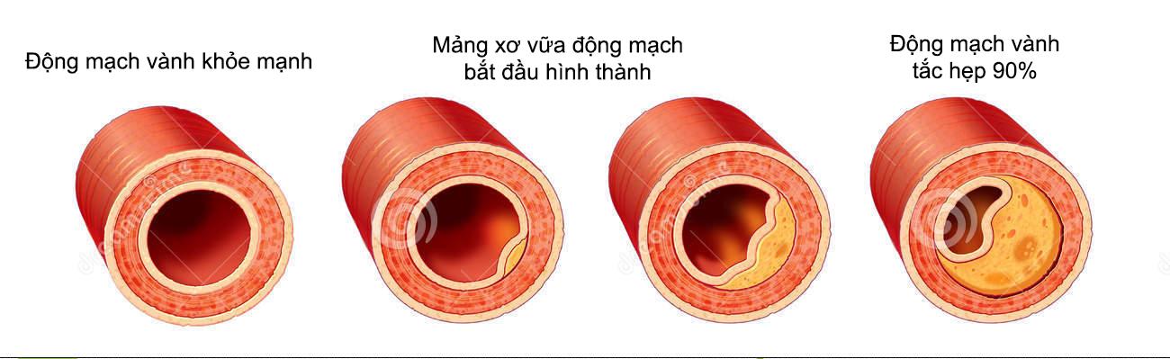 Kết quả hình ảnh cho quá trình hình thành mảng xơ vữa động mạch