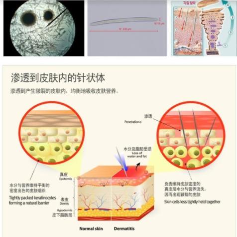 Trị sẹo rỗ bằng vi kim tế bào gốc là phương pháp duy nhất có thể tác động đến cấu trúc sâu bên trong da