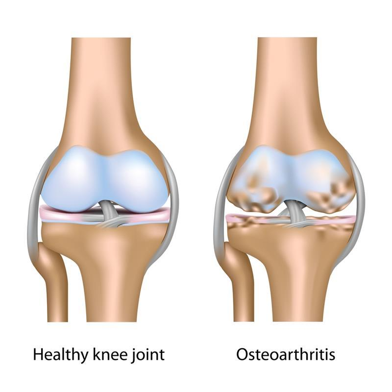 Osteoartrit Alternatif Tedavi - Alternatif Terapi