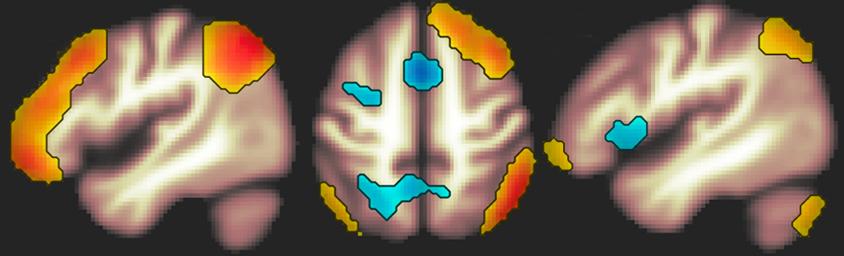 varredura do cérebro FPN
