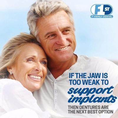 Răng giả Chicago vs Implant cấy ghép ưu và nhược điểm