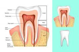 الم الاسنان