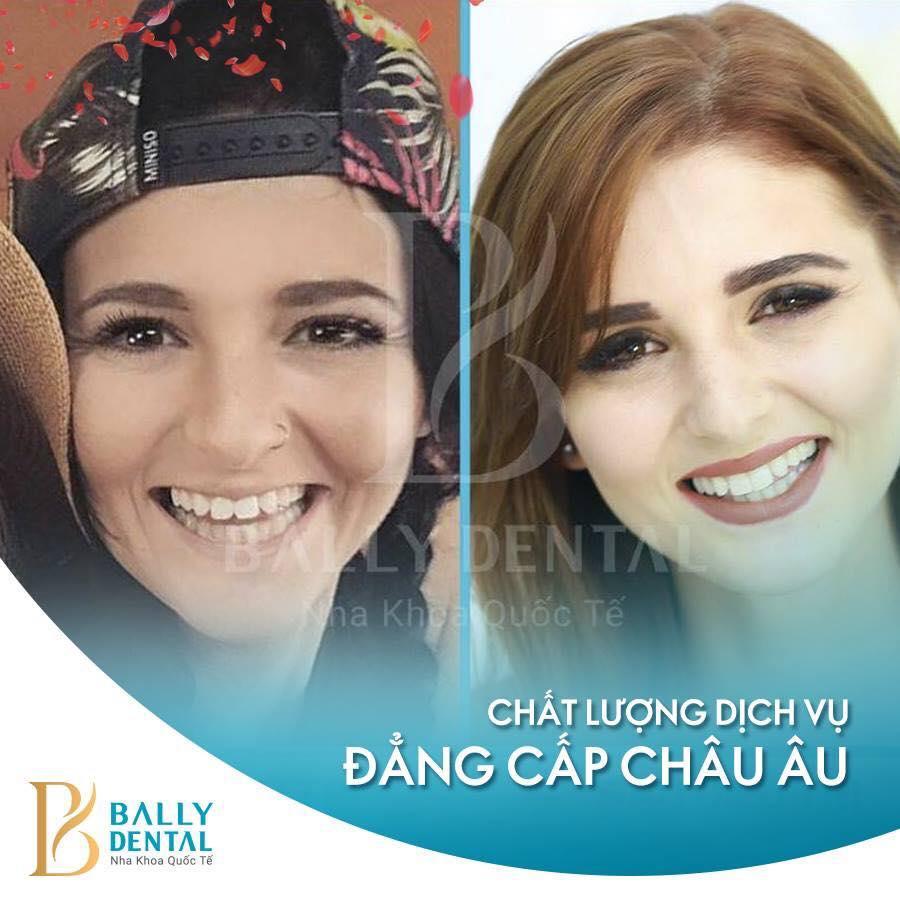 Cách giữ gìn và chăm sóc răng bọc sứ tốt nhất – Nha khoa Bally