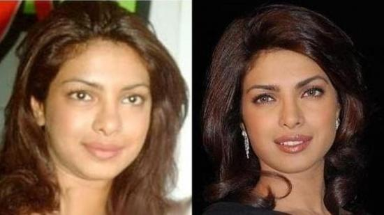 http://www.celebrityplasticsurgeryhub.com/wp-content/uploads/2014/08/Priyanka-Chopra-Plastic-Surgery-Picture-Before-and-After.jpg