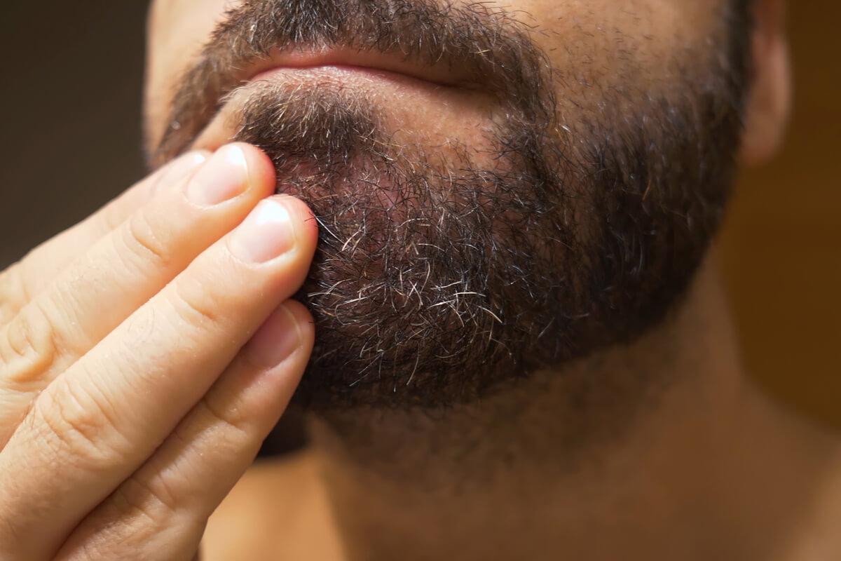zone dermatita seboeica - barba