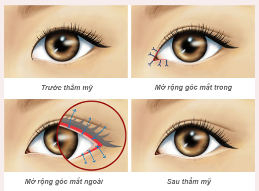 vien-tham-my-dvincy-thuc-hien-cong-nghe-moi-cat-mi-nang-co-amis-revision-eyes
