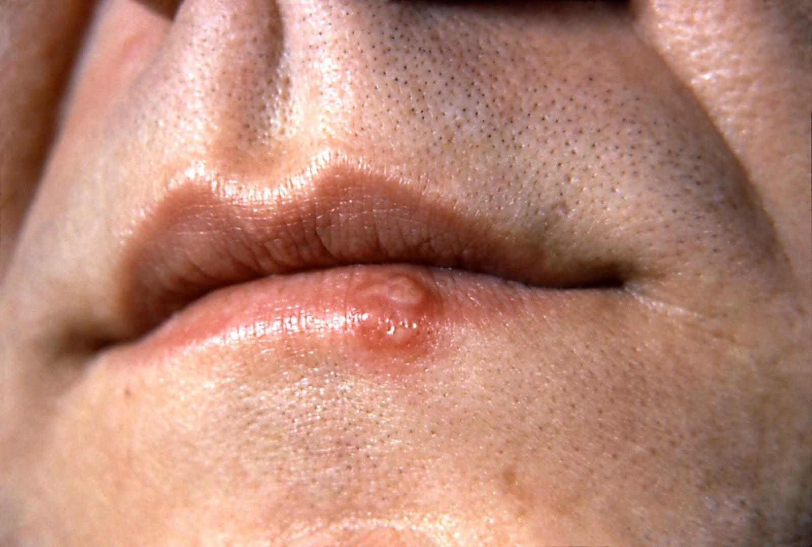 bệnh nam giới thường gặp ở tuổi 50