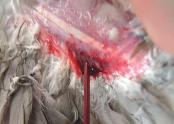 The superficial ulnaris vein has been lanced and blood is being drawn into a micro capillary tube