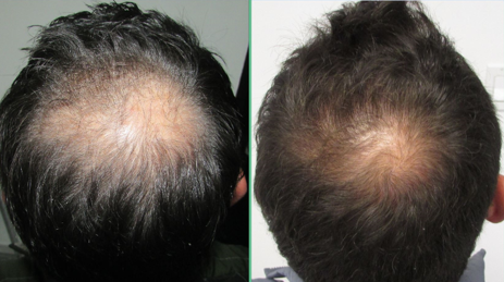 Re-Grow Your Natural Hair with Dr. Ray Nettles Stopandregrow.com