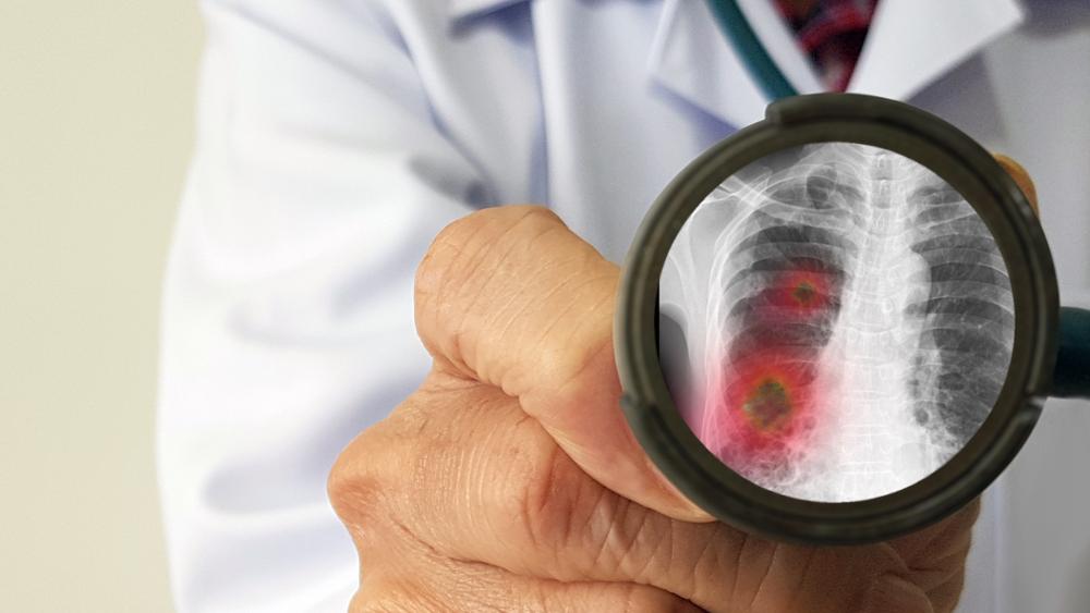 Redução de inflamações pulmonares com uso de NO motivou pesquisadores. (Fonte: Shutterstock)