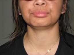 Image result for pic of lip fluttering