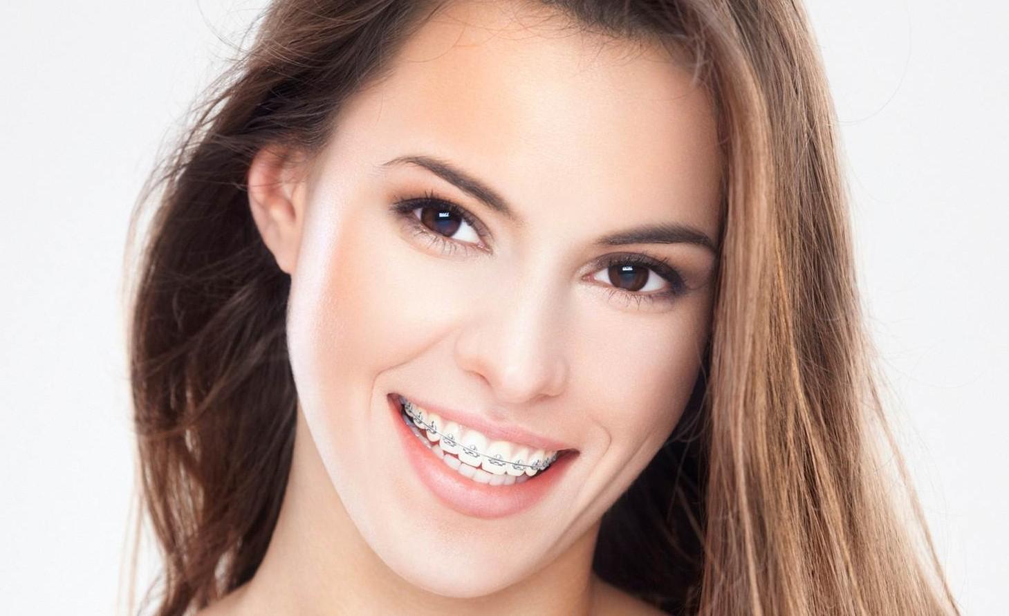 Niềng răng là một trong những biện pháp tốt để chữa cười hở lợi
